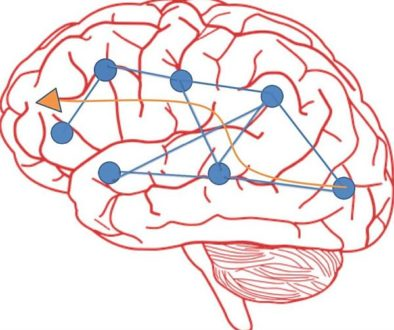 L'activité cérébrale qui sous-tend nos comportements (langage, motricité, émotions...) est accompagnée d'un échange d'information intense entre des parties éloignées du cerveau. Cette information se propage à la surface du cortex sous la forme d'ondes circulantes. La direction de propagation de ces ondes est illustrée ici par la grande flèche orange. Il y a des endroits spécifiques du cortex qui émettent, reçoivent et traitent l'information, qu'on appelle des épicentres (ronds bleus). Ils sont spécifiques à chaque personne. Les ondes peuvent se rencontrer et changer de direction. La neuromodulation mise en oeuvre dans le projet de CorStim SAS vise à remodeler les réseaux du langage en agissant sur les interactions entre les épicentres du langage tout en étant guidé par un modèle mathématique.